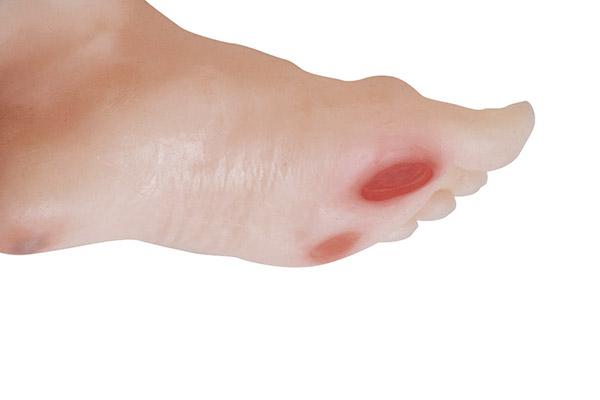 Úlceras y quemaduras